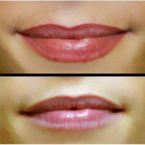 What is Lip Contour